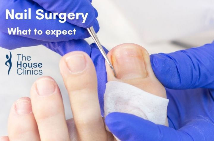 Toenail Surgery: A Complete Guide For Patients image