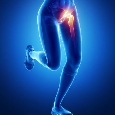 Hip and Groin Pain: Causes and treatmet options, Chiropractic and Physiotherapy, The House Clinics, Bristol