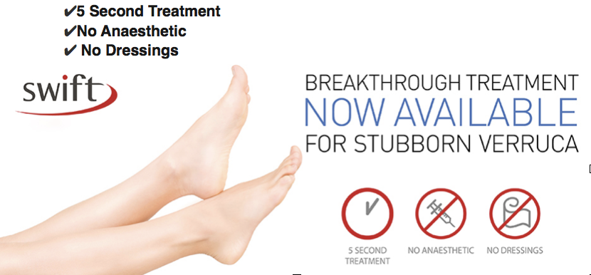 Swift Treatment - Breakthrough Treatment Now Available For Stubborn Verruca | The House Clinics